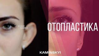Отопластика - Мои Результаты | Otoplasty - My Results