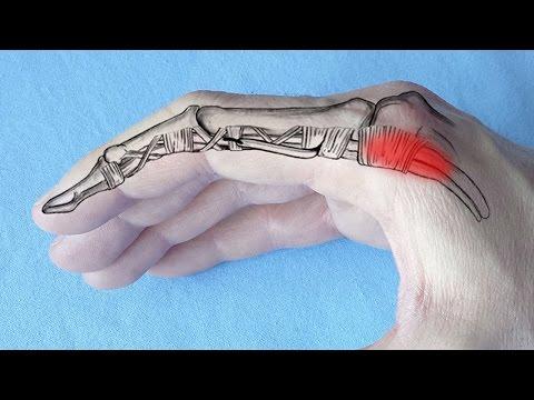 tratamentul artrozelor artrozice ozokerite