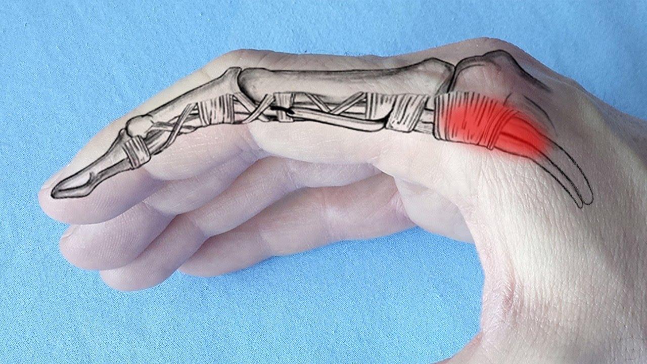 articulația doare pe degetul mic