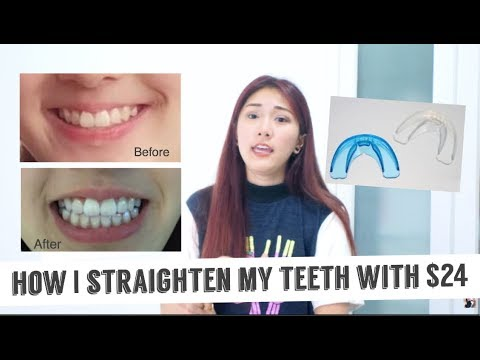 How I Straighten My Teeth With Only $24 (Really Effective)