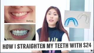 How I straighten mỳ teeth with only $24 (Really effective)
