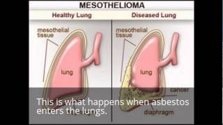 Asbestos |  Video For History