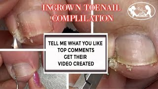 Pedicure Ingrown Toenail Relief Compilation with Slo Motion