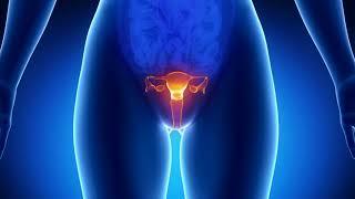 Как избавиться от кисты на яичниках без операции народными средствами? Фолликулярная киста яичника