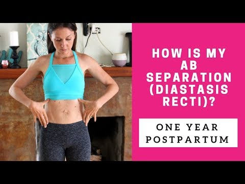 1 year postpartum belly| diastasis recti update