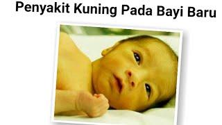 Dokter 24  - NO Panik! Yang Harus Dilakukan Saat Bayi Kuning.