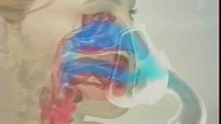 видео Ингаляции при бронхите небулайзером