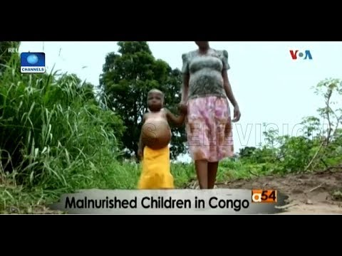 More Than 250,000 Children Face Malnutrition In DRC - UNICEF |Africa 54|