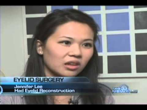 Asian Eyelid Surgery Story Featured on the CW 33 News