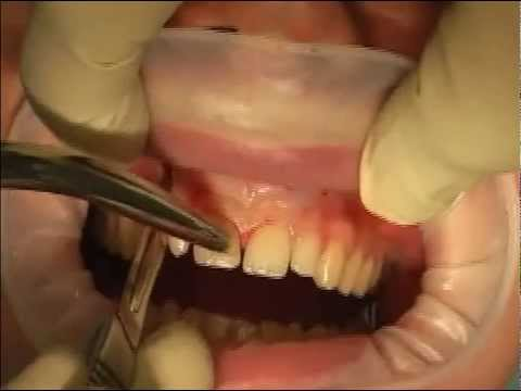 LIVE OPERATION Root Tip Resektion with orthograde filling