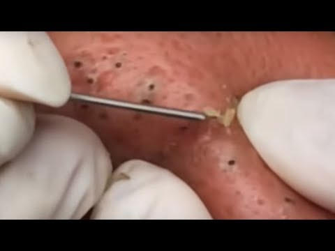 Most Popular Dilated Pores & Blackheads of All Time - Facebook Preview