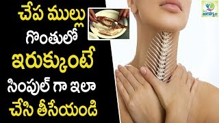 Easy Ways to Get Rid of Fishbone Stuck in Your Throat - Health Tips in Telugu || Mana Arogyam