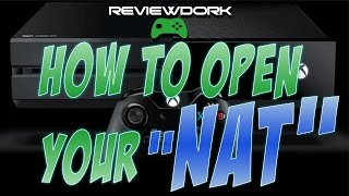 Xbox Open NAT TYPE - DMZ, UPnP : Fix For Honor Connections Problems, Issues & Errors
