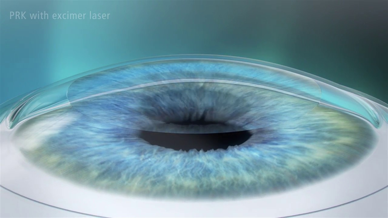 Download Photorefractive Keratectomy (PRK) Laser Eye Surgery