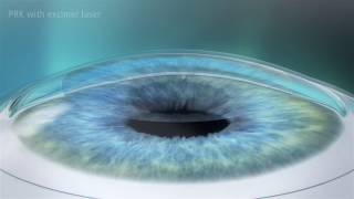 Photorefractive Keratectomy PRK Laser Eye Surgery