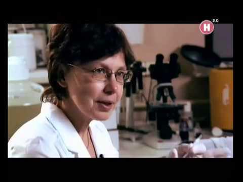 Что показывает СОЭ при онкологии? Степень важности анализа