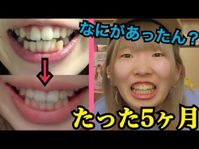 歯並び タナカガ