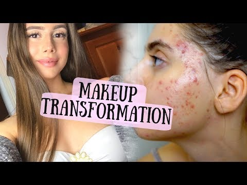 MY MAKEUP ACNE COVERAGE TRANSFORMATION ROUTINE || Soft Glam, Glowy Skin from YouTube · Duration:  16 minutes 39 seconds
