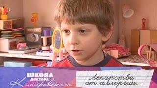 видео Аллергия на лекарства: симптомы, лечение, что делать