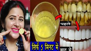 सिर्फ 5 मिनट में पीले गंदे दांतों को मोती की तरह चमका देगा यह घरेलू नुस्खा ! White teeth home remedy