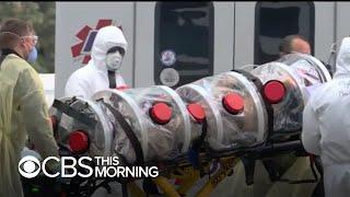 Cancer Survivor Dies Of Coronavirus In California