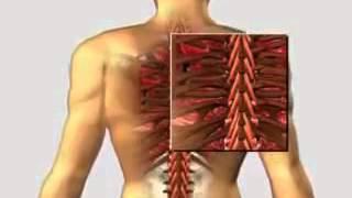Болезни костей: часть 3
