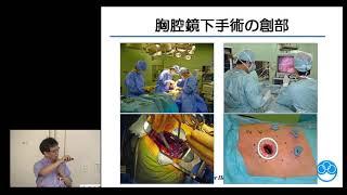 肺がん ~肺がんの外科治療・薬物療法~
