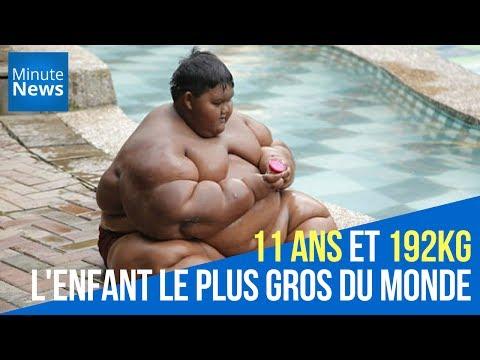 11 ans et 192kg : Il est l'enfant le plus gros du monde