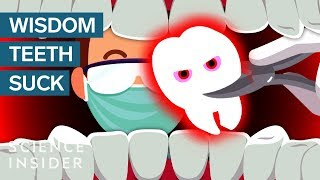 Why Do Wisdom Teeth Suck?