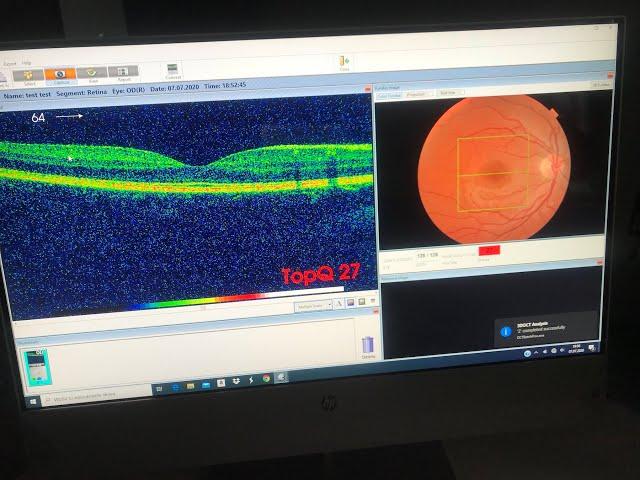 Оптико-когерентный томограф Topcon 3D OCT 1 Maestro -что за чудо офтальмологии?!