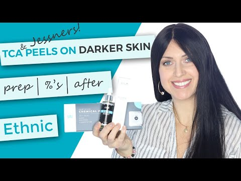 TCA Peel On Dark Skin | Preparation | Percentages | After Care | Body