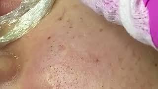 removing cystic acne чёрные точки прыщи выдавливание акне