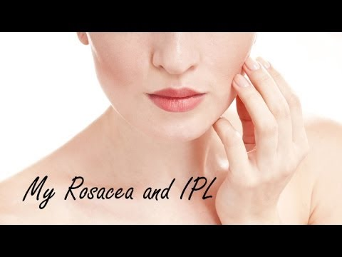 My Rosacea And IPL  | PHYRRA