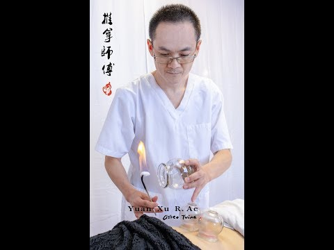 Bird-pecking Moxa and TuinaR from acupuncturist YUAN XU