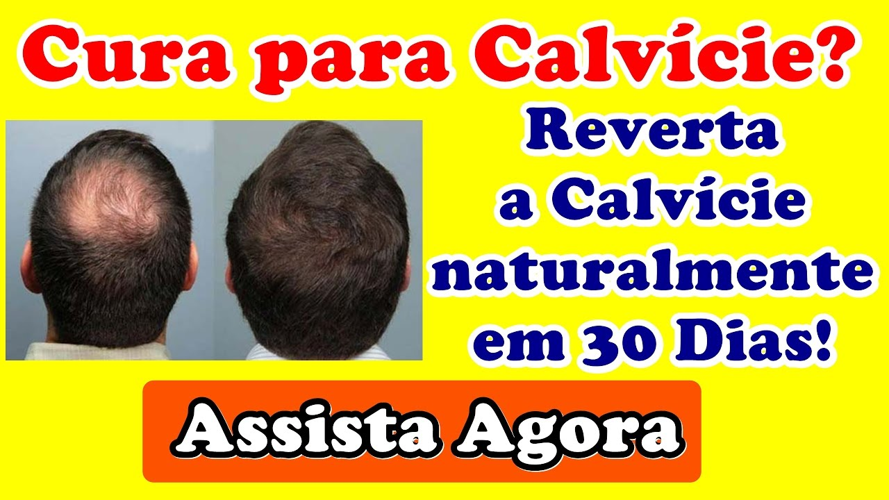 A ebook vencendo calvicie