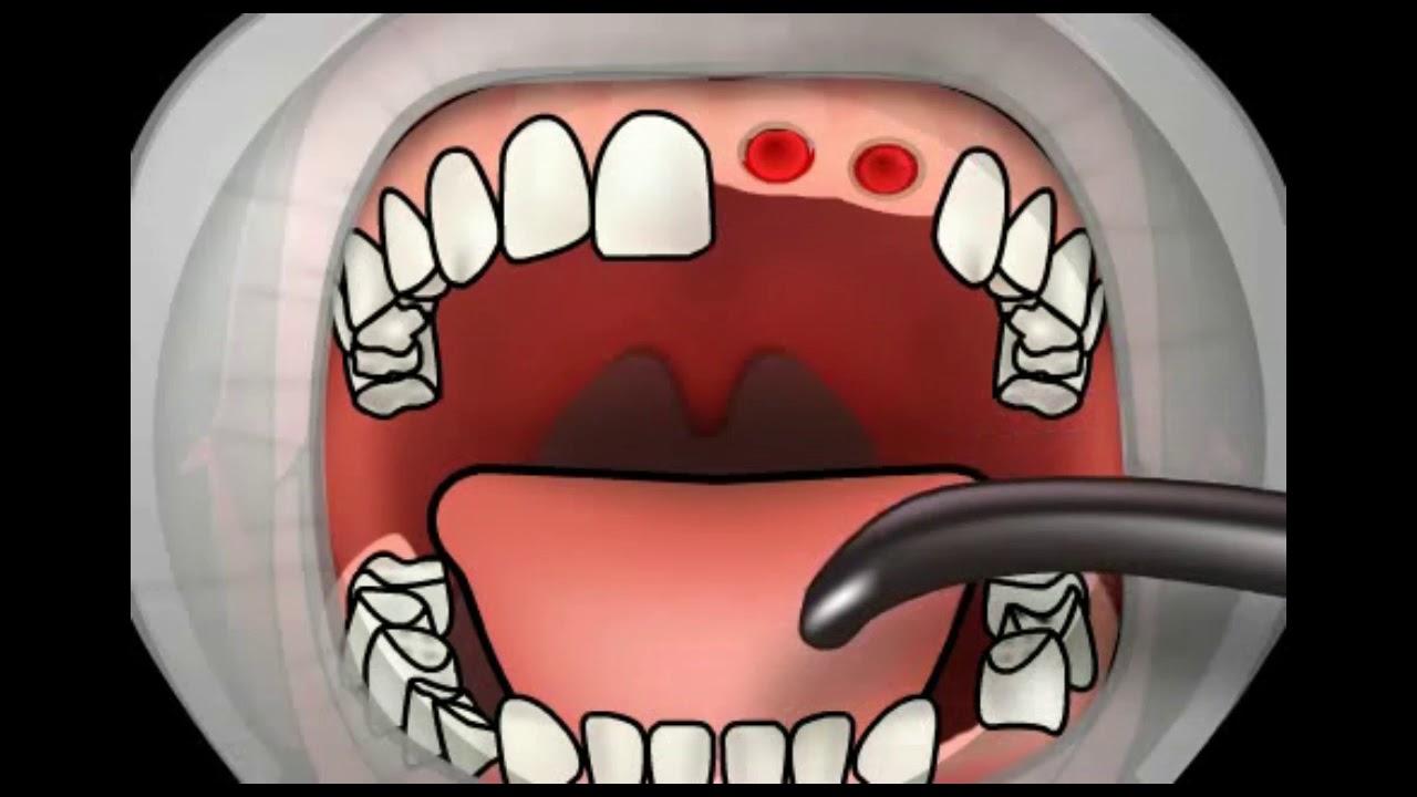 infectii mandibulare