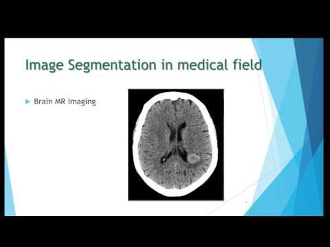 EEE6512 - Image Segmentation using K-means Clustering Algorithm