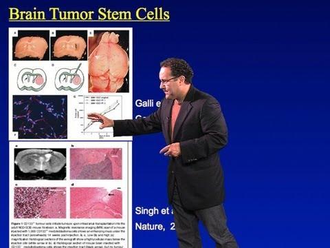 Alfredo Quiñones-Hinojosa (Johns Hopkins) Part 1: Brain Tumors