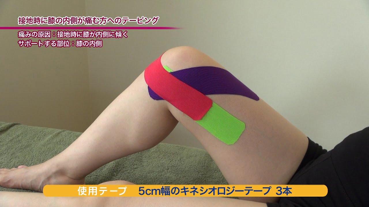 痛い が 膝 内側 の