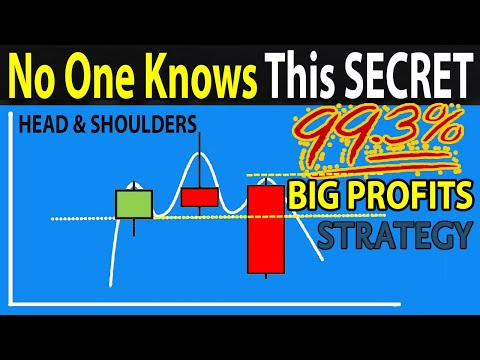 """🔴 The Only """"HEAD & SHOULDERS"""" Trading Strategy You Will Ever Need (5 Easy Steps To BIG PROFITS)"""