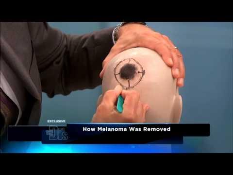 Removing Skin Cancer Medical Course