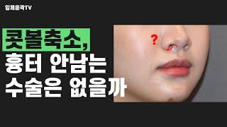 콧볼축소수술도 방법에 따라 흉터가 안보일 수 있다 !