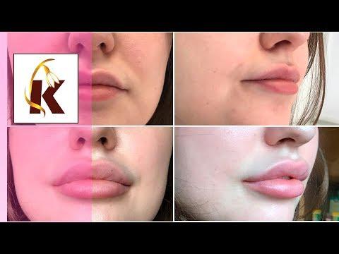 Увеличение губ - максимальный объем 3ml