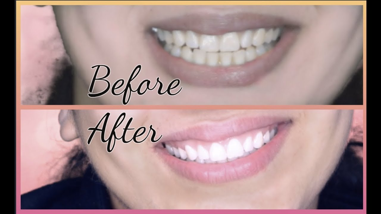10 ways to effectively whiten your teeth at home