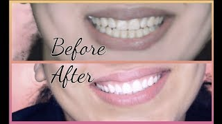 Teeth Whitening At Home In 10 Minutes    How To Whiten Your Yellow Teeth Naturally    100% Effective