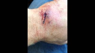 Compound bow accident must see!! Tommy Post