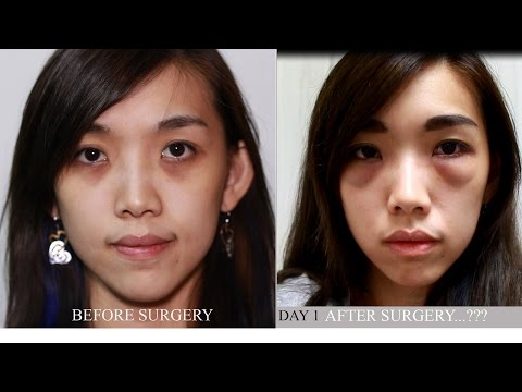 1DAY AFTER SURGERY-   eye bag removal surgery in Singapore ( BLEPHAROPLASTY PART2 )