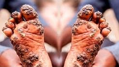 hqdefault - Black Pimple On Toe