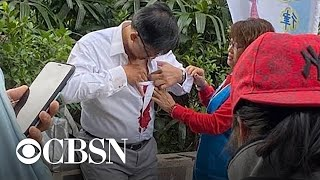 Pro-Beijing lawmaker stabbed in the chest in Hong Kong