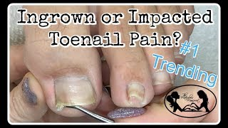 👣 Impacted or Ingrown Toenail Pedicure Tutorial 👣